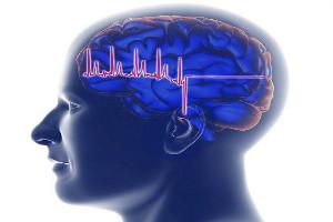 男性得了癫痫病会遗传吗